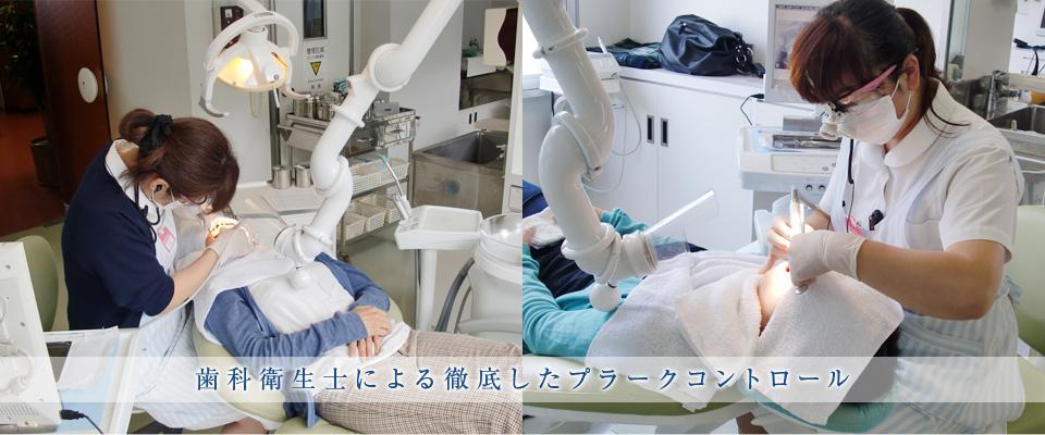 歯科衛生士による徹底したプラークコントロール