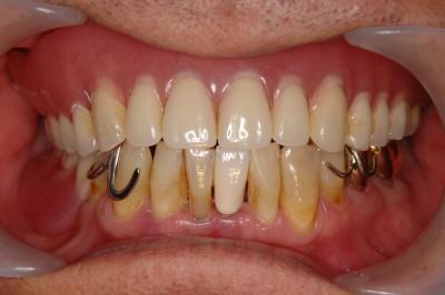 入れ歯をつけた状態です。
