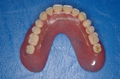 使用する入れ歯です「2」
